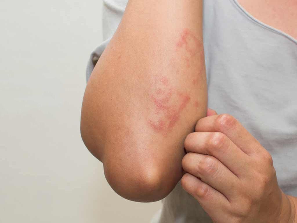 شایعترین عوارض جانبی در مورد درمان با کلراید آلومینیوم و استفاده از آن، خارش و تحریکات پوستی مداوم است.