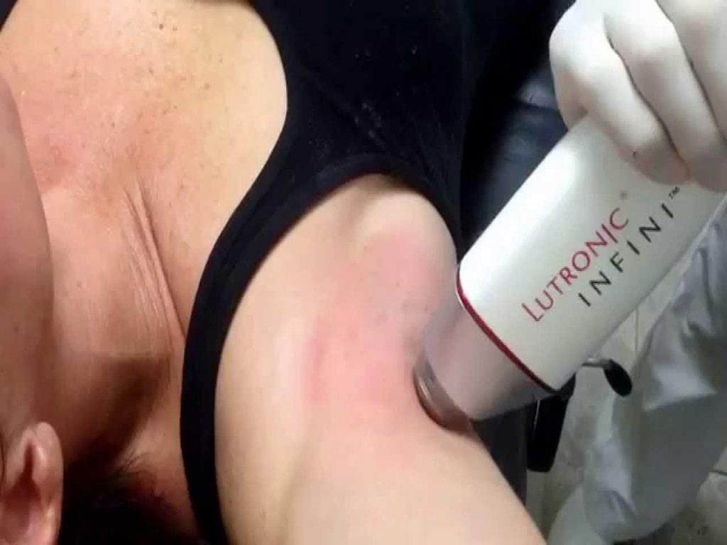 درمان عرق زیر بغل با لیزر
